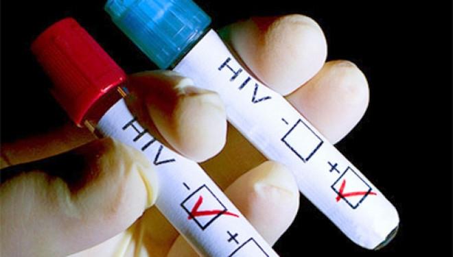 ВИЧ-инфекция не дремлет