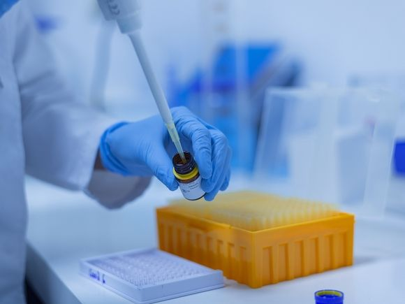 Ученые нашли, в чем причина тяжелых патологий у заболевших коронавирусом