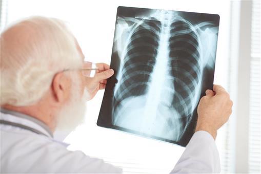 Рак легких — на первом месте